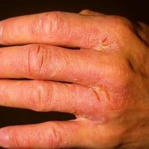 Причины, симптомы и лечение нейродермита на руках