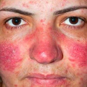 Сухая себорея на лице: выход есть? Как быстро вернуть коже опрятный вид?