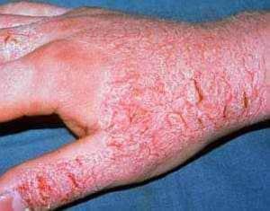 Крем от контактного аллергического дерматита thumbnail