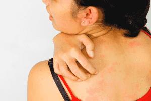 Зуд кожи тела