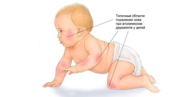 зоны поражения кожи дерматитом