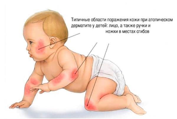 места поражения дерматитом