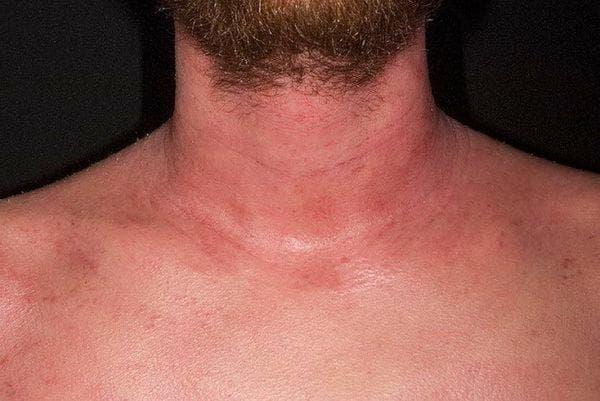дерматит на шее