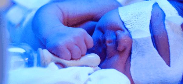 Из за чего дерматит на руках у новорожденного thumbnail