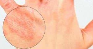 Лечиться ли хронический дерматит thumbnail