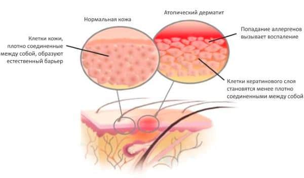 схема атипичный дерматит