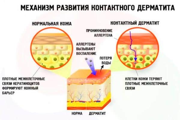 Китайский крем от атопического дерматита thumbnail