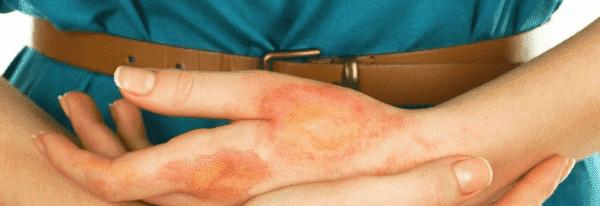Определение хронического дерматита