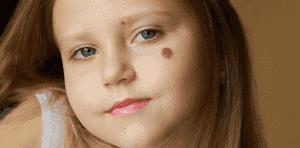 Пигментные пятна у детей: основные жалобы