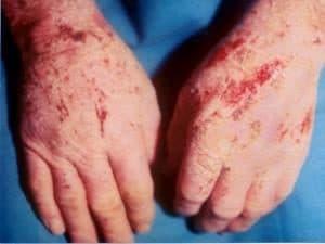 Причины хронического дерматита