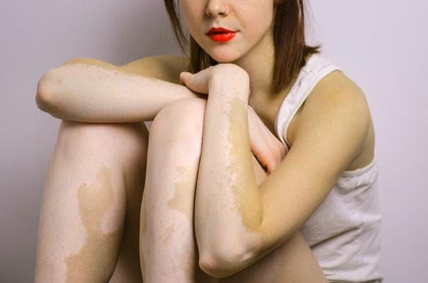 Причины нарушения выработки меланина