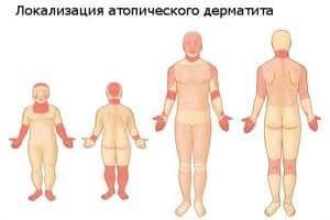 Процесс возникновения атопического дерматита