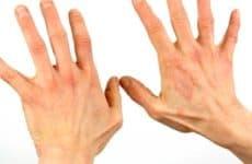 Проявления холодового дерматита и способы борьбы с ним