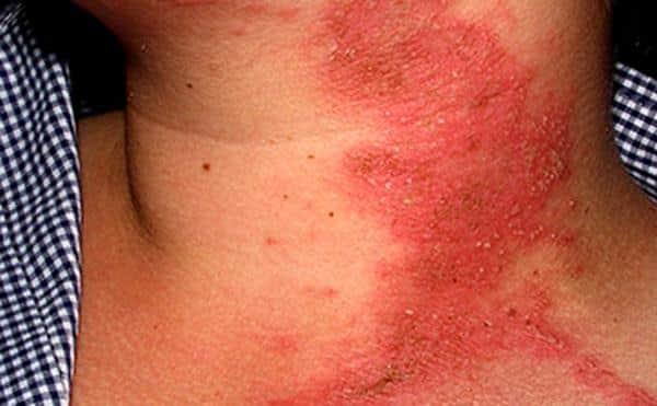 дерматит на теле