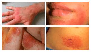 контактный дерматит на разных участках тела