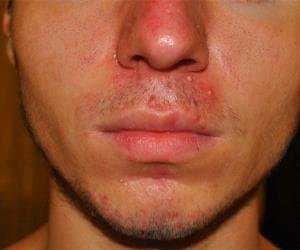 Розацеаподобный дерматит лица