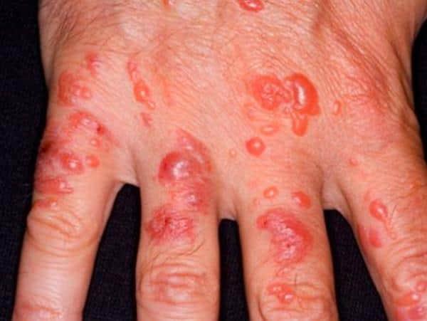 Буллезный (пузырчатый) дерматит на руках