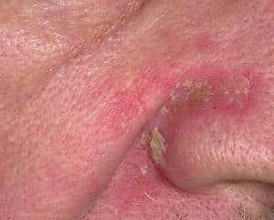 дерматит на носу