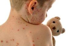Вирусные, бактериальные и инфекционные дерматиты: все о причинах, симптомах и лечении