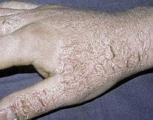 Атопический дерматит рук