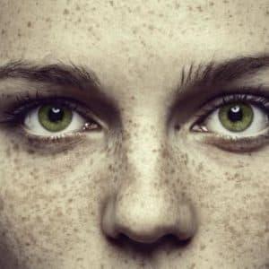 Пигментные пятна на лице: почему они появляются и как от них избавиться?