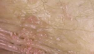 Остроконечные кондиломы на половых губах