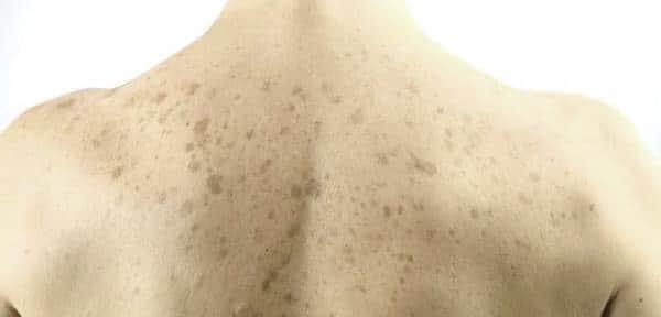Пигментные пятна в области спины