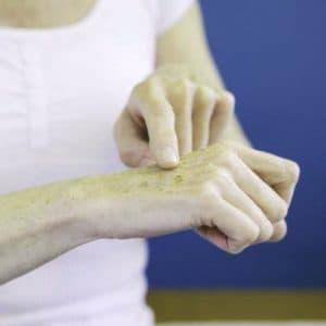 Причины веснушек на руках, как избавиться. Опасны они или нет?