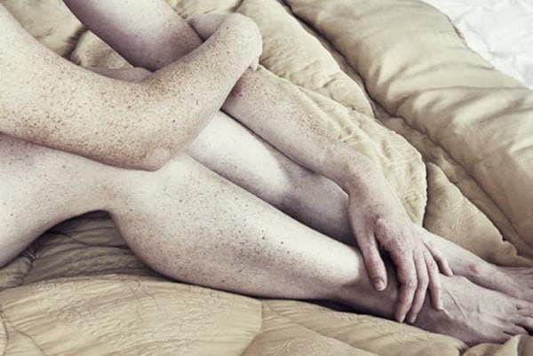 эфелиды на ногах