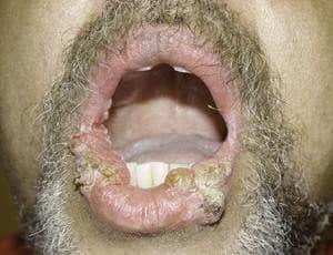 кондиломы губ