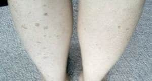 асимметричная пигментация на ногах
